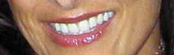 Estetica & Smile-design